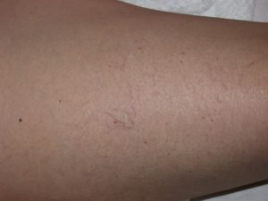 Vein Laser Before