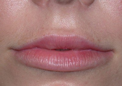 LipsAfter2