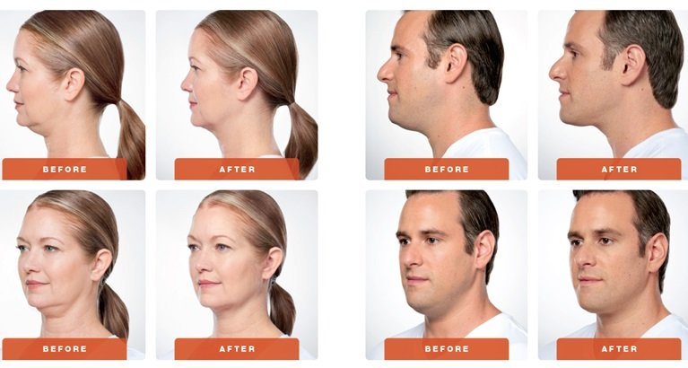 Chin + Neck Treatments