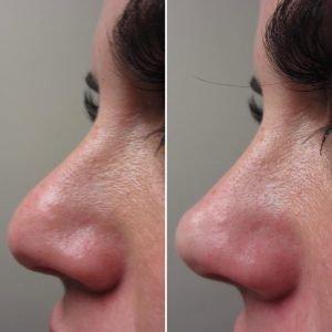 liquid nose job